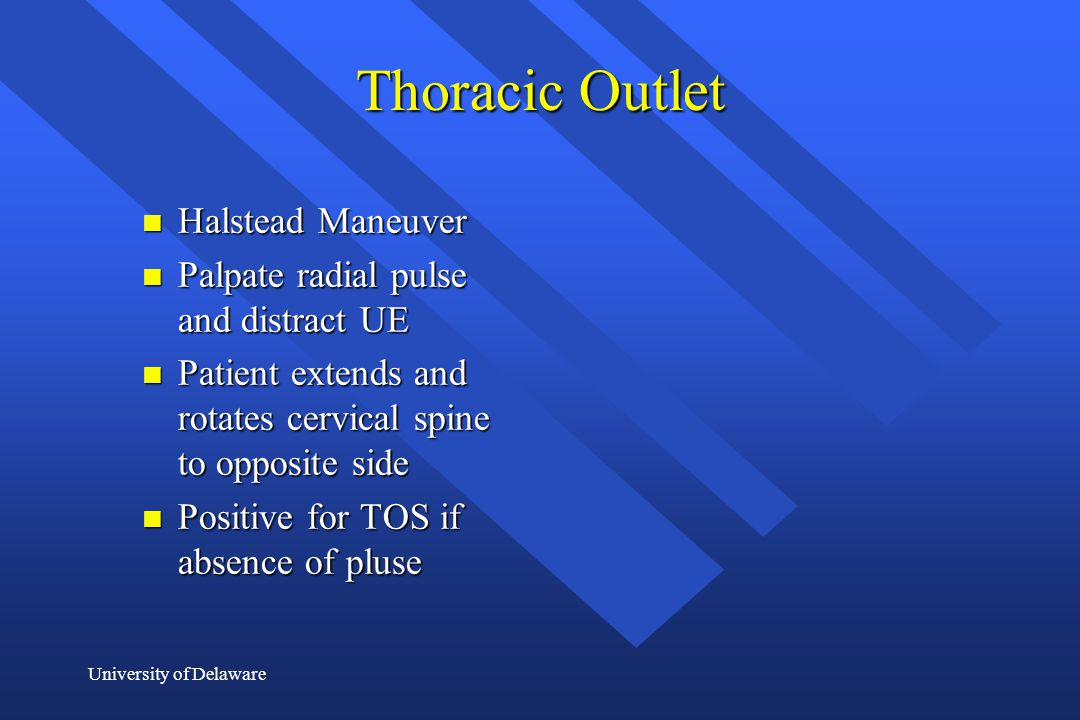 University of Delaware Thoracic Outlet n Halstead Maneuver n Palpate radial pulse and distract UE n Patient extends and rotates cervical spine to oppo
