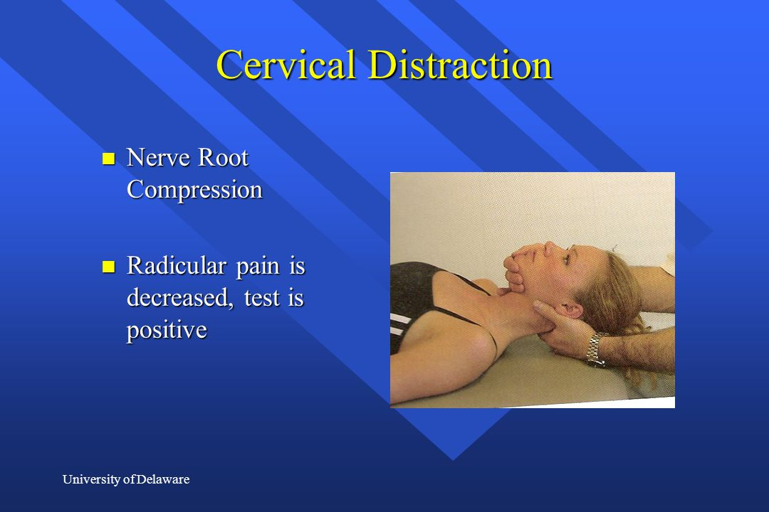 University of Delaware Cervical Distraction n Nerve Root Compression n Radicular pain is decreased, test is positive