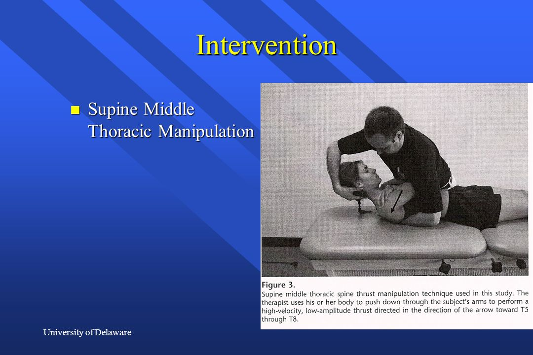 University of Delaware Intervention n Supine Middle Thoracic Manipulation