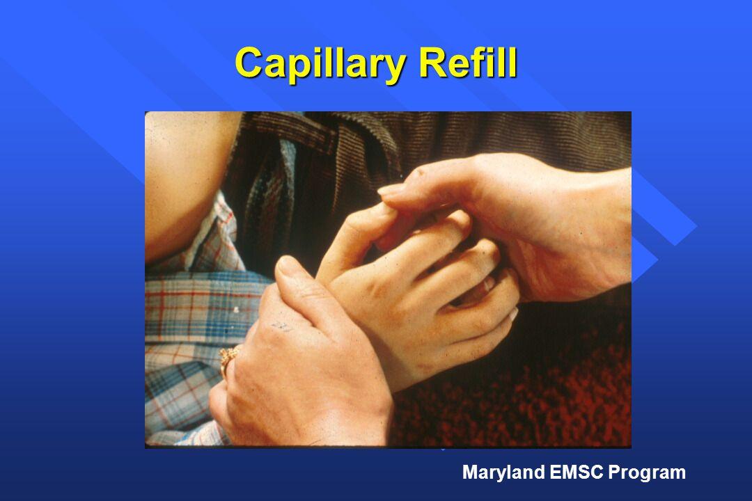 Maryland EMSC Program Capillary Refill
