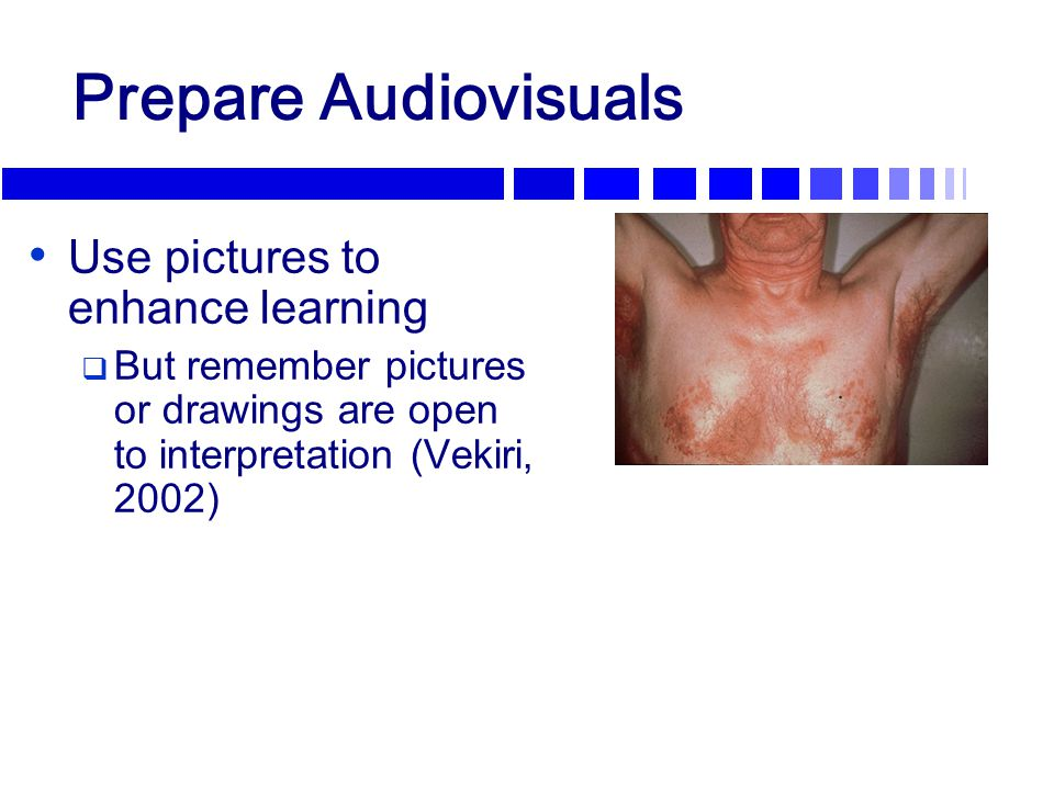 Prepare Audiovisuals Use pictures to enhance learning  But remember pictures or drawings are open to interpretation (Vekiri, 2002) Seborrheic Dermati