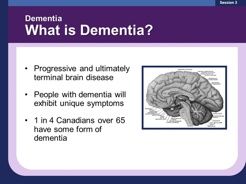 Progressive and ultimately terminal brain disease People with dementia will exhibit unique symptoms 1 in 4 Canadians over 65 have some form of dementia Dementia What is Dementia.