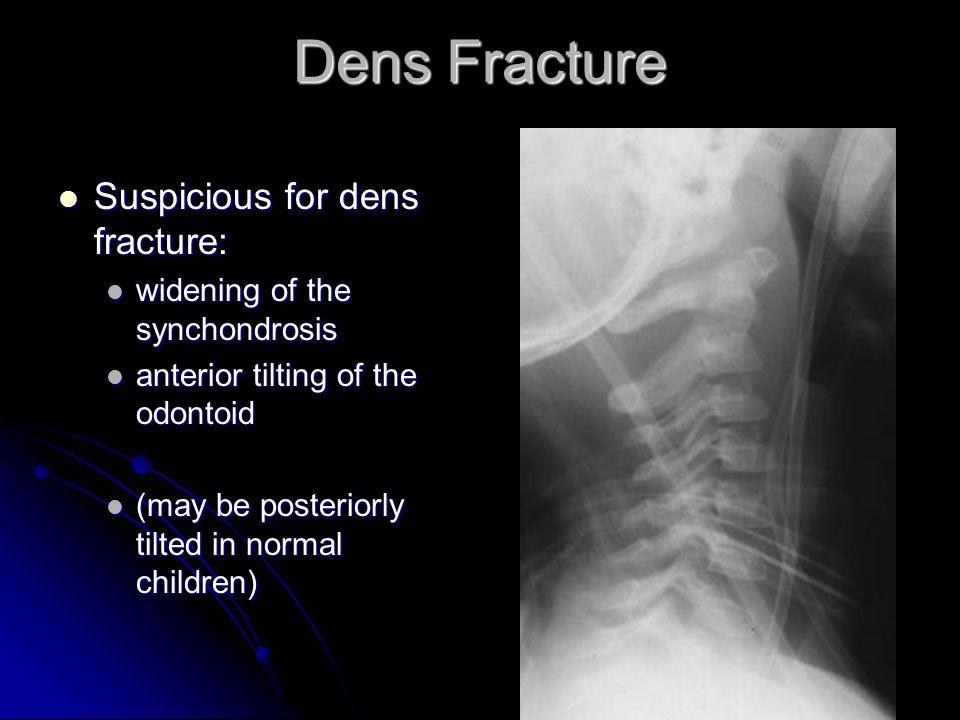 Dens Fracture Suspicious for dens fracture: Suspicious for dens fracture: widening of the synchondrosis widening of the synchondrosis anterior tilting