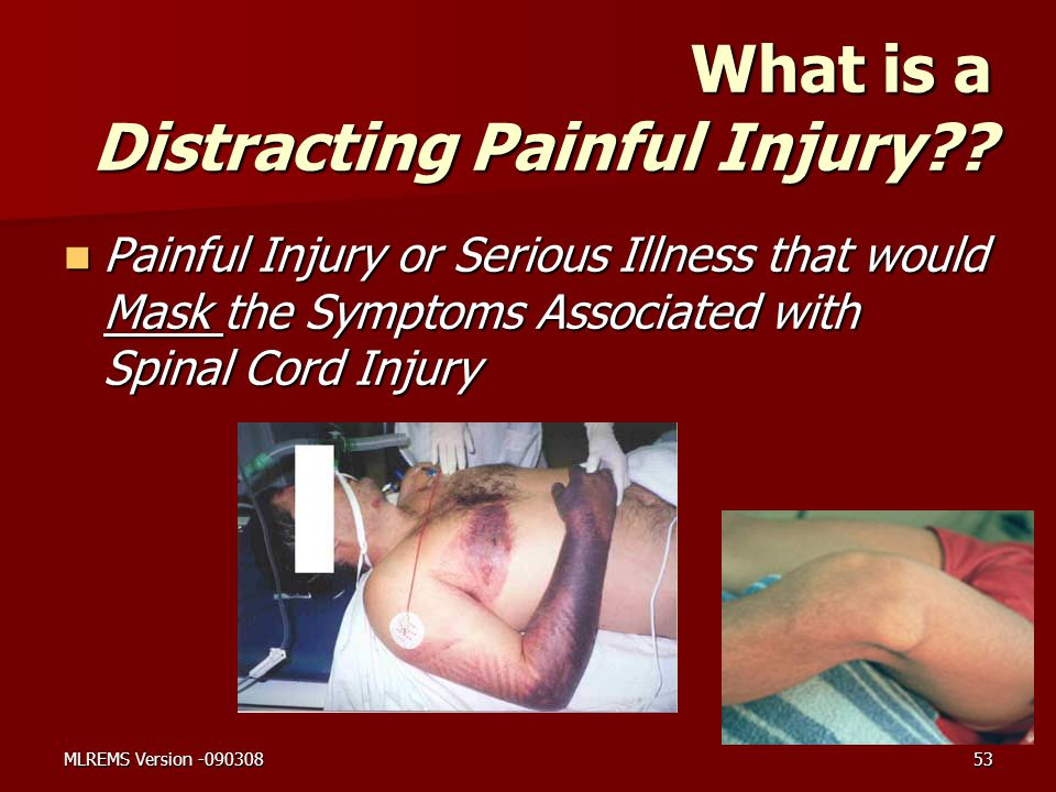 What is a Distracting Painful Injury?? Painful Injury or Serious Illness that would Mask the Symptoms Associated with Spinal Cord Injury Painful Injur