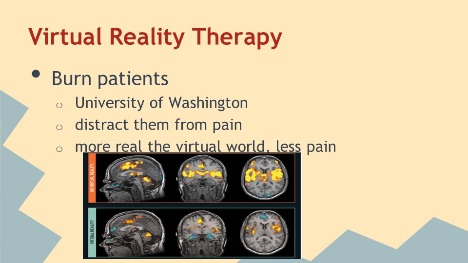 Virtual Reality Therapy Burn patients o University of Washington o distract them from pain o more real the virtual world, less pain