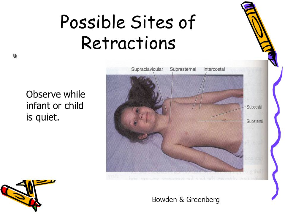 Possible Sites of Retractions Observe while infant or child is quiet. Bowden & Greenberg