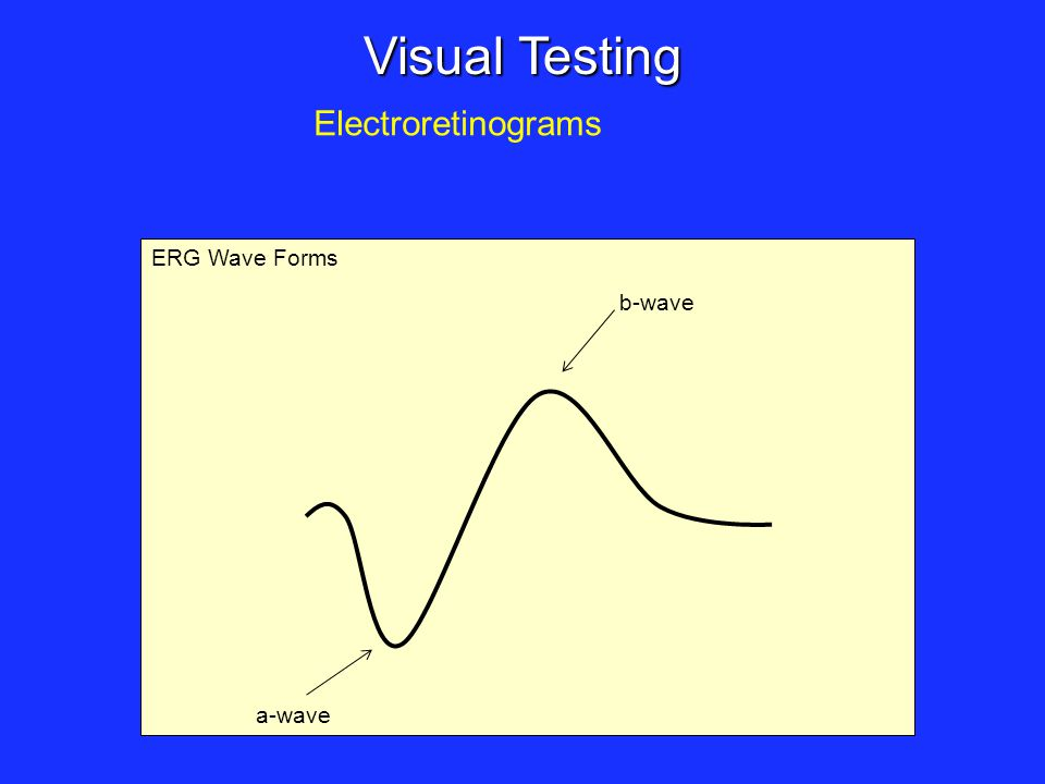 ERG Wave Forms Visual Testing Electroretinograms b-wave a-wave