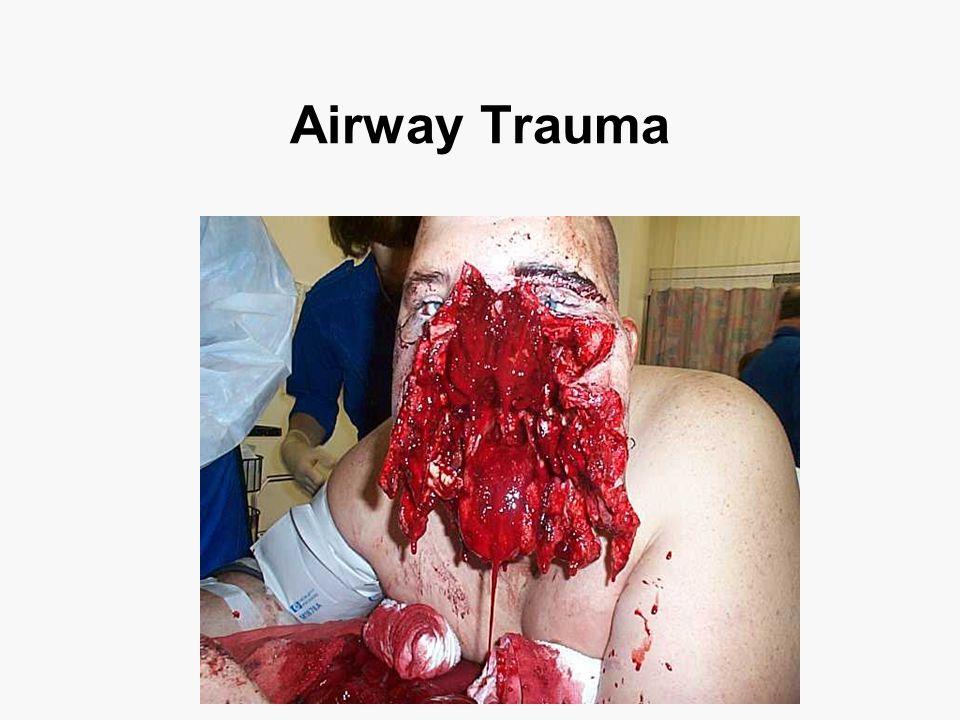 Airway Trauma