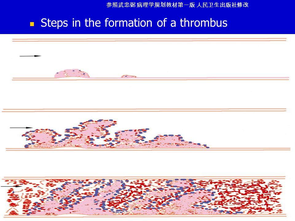 Steps in the formation of a thrombus 参照武忠弼 病理学规划教材第一版 人民卫生出版社修改