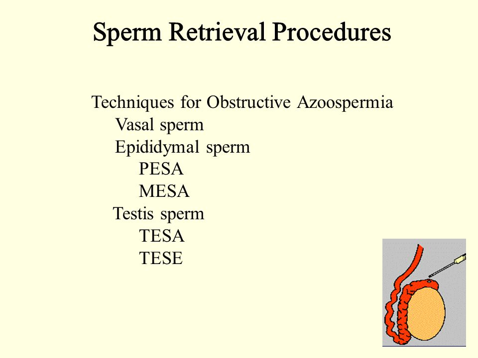 Techniques for Obstructive Azoospermia Vasal sperm Epididymal sperm PESA MESA Testis sperm TESA TESE