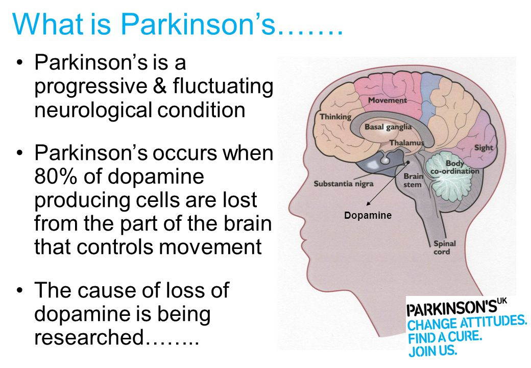 1 in 500 of general population 127,000 in UK in 2012 > 162,000 in UK by 2020 Average age of diagnosis 55 - 74 years Does not discriminate – all ethnic groups Parkinson's is rarely a hereditary condition (5% of cases) Parkinson's – Incidence & Prevalence General Practice Research Database (GPRD) 2009