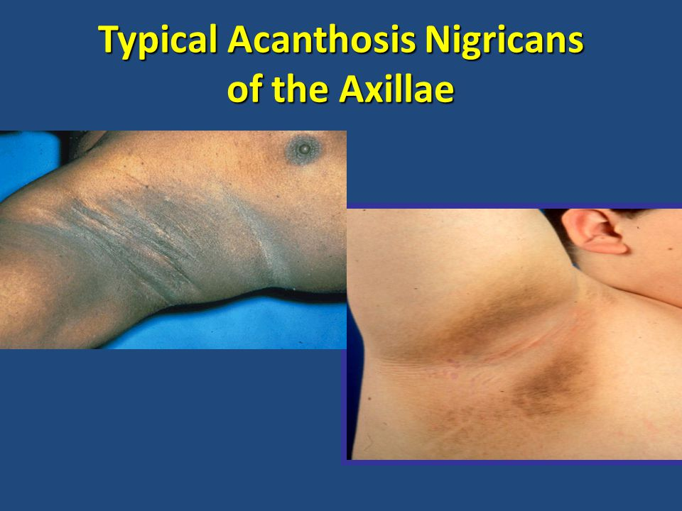 Typical Acanthosis Nigricans of the Axillae
