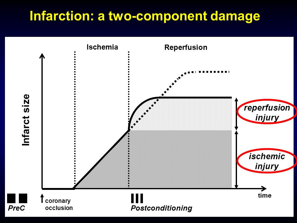 coronary occlusion Ischemia Reperfusion reperfusion injury ischemic injury Infarct size time PostconditioningPreC Infarction: a two-component damage