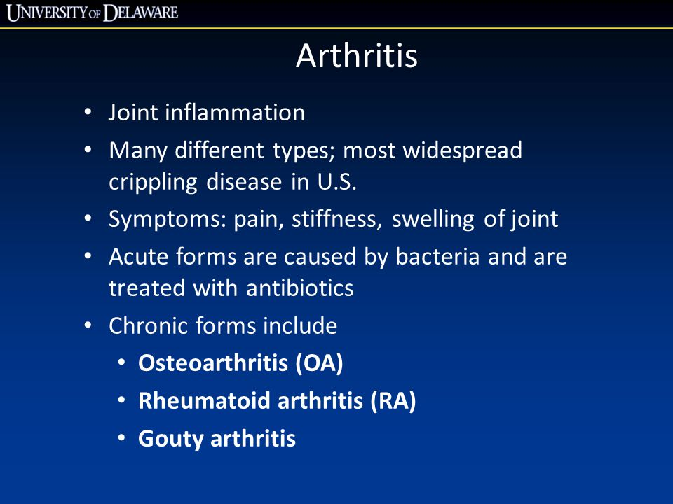 Arthritis Joint inflammation Many different types; most widespread crippling disease in U.S. Symptoms: pain, stiffness, swelling of joint Acute forms