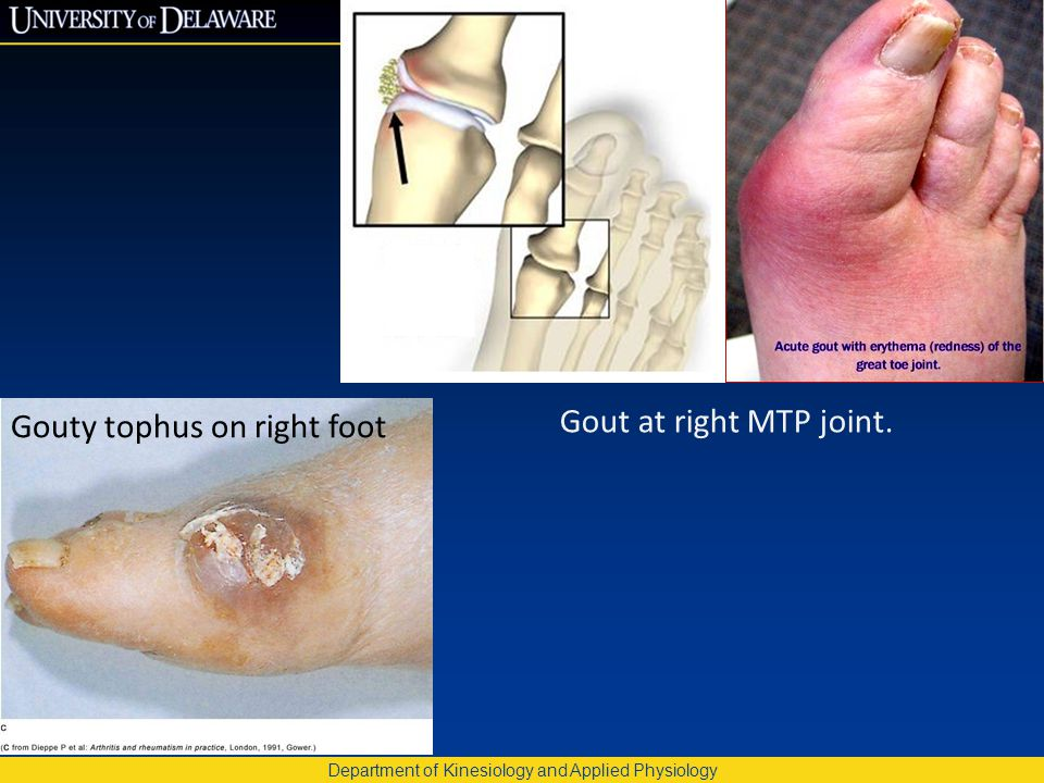 Department of Kinesiology and Applied Physiology Gout at right MTP joint. Gouty tophus on right foot