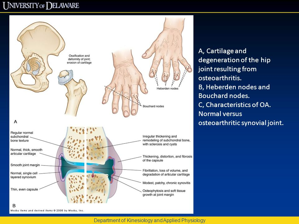 Department of Kinesiology and Applied Physiology A, Cartilage and degeneration of the hip joint resulting from osteoarthritis. B, Heberden nodes and B