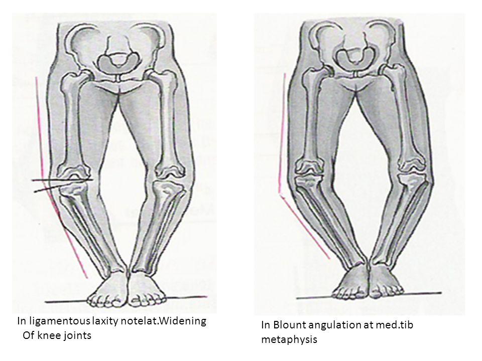 DD Acute hip fracture Perthes disease Acute transient synovitis Osteomyelitis Septic arthritis