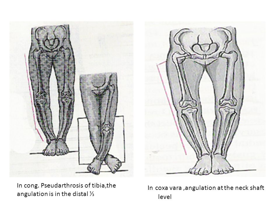 Gait: intoeing, lateral thrust-the fibular head and upper tibia shift laterally in Blount due to laxity and incompetence of the lat.