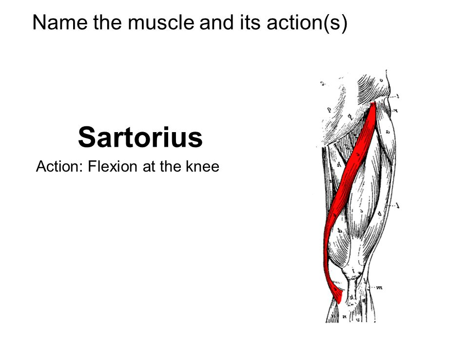 Name the muscle and its action(s) Sartorius Action: Flexion at the knee