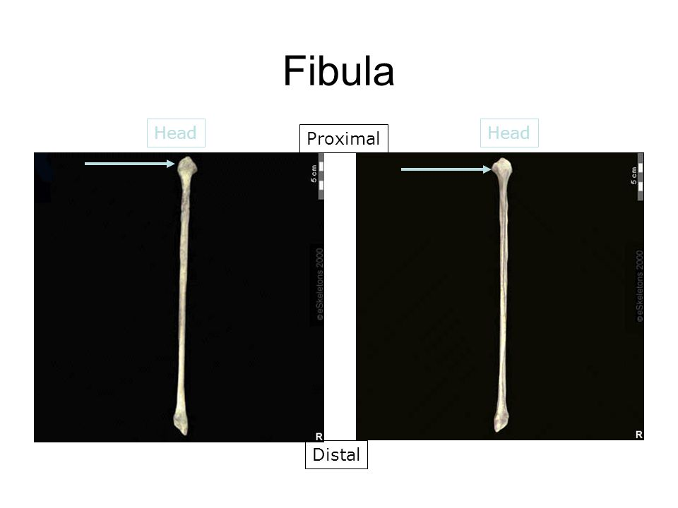 Fibula Head Proximal Distal