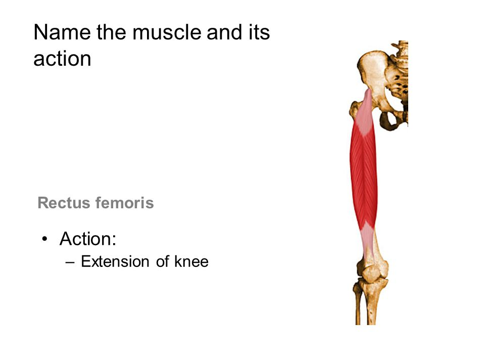 Rectus femoris Action: –Extension of knee Name the muscle and its action