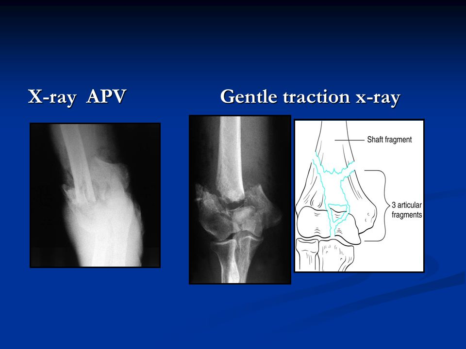 X-ray APV Gentle traction x-ray
