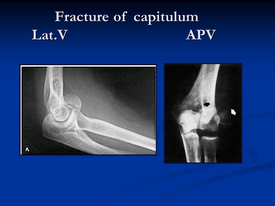 Fracture of capitulum Lat.V APV Fracture of capitulum Lat.V APV