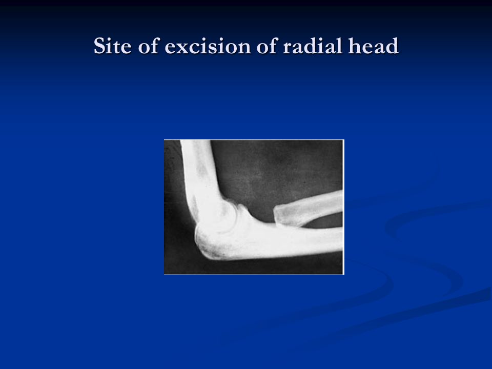 Site of excision of radial head