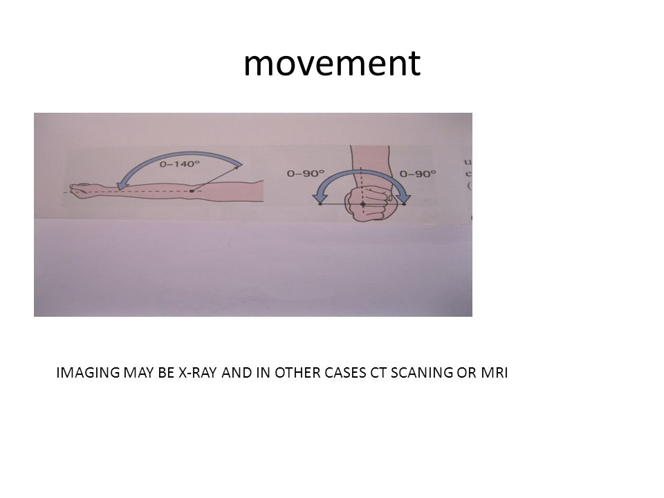 movement IMAGING MAY BE X-RAY AND IN OTHER CASES CT SCANING OR MRI