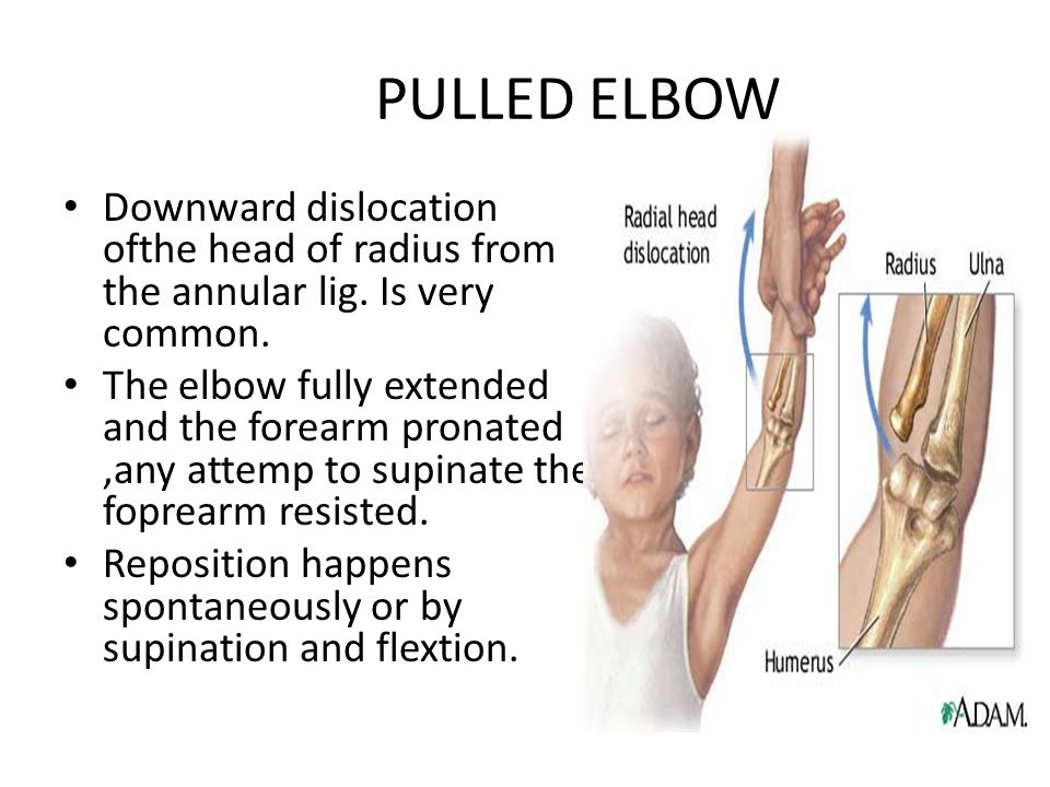 PULLED ELBOW Downward dislocation ofthe head of radius from the annular lig.