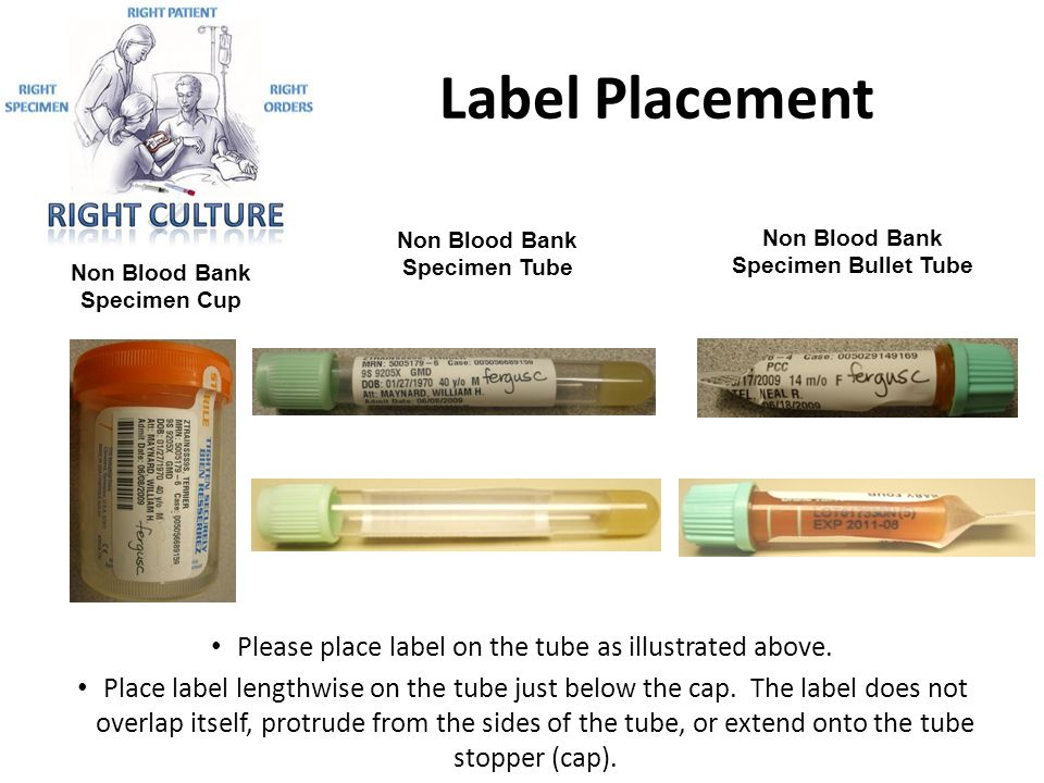 Label Placement Please place label on the tube as illustrated above. Place label lengthwise on the tube just below the cap. The label does not overlap
