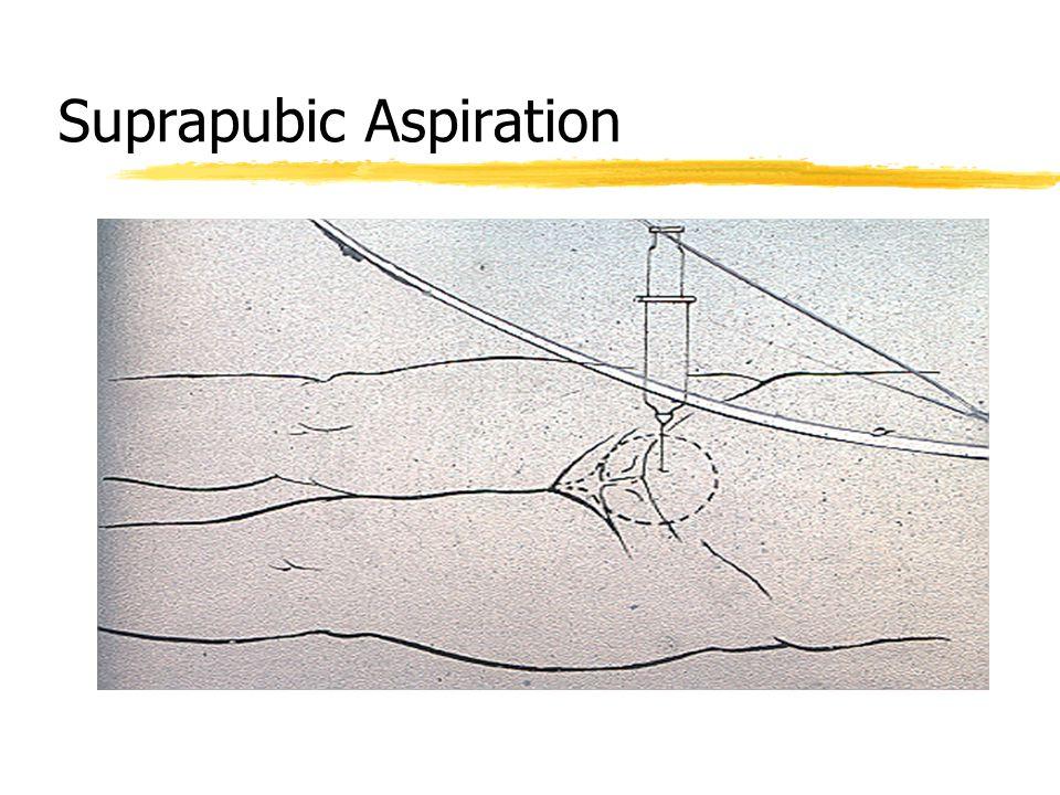 Suprapubic Aspiration