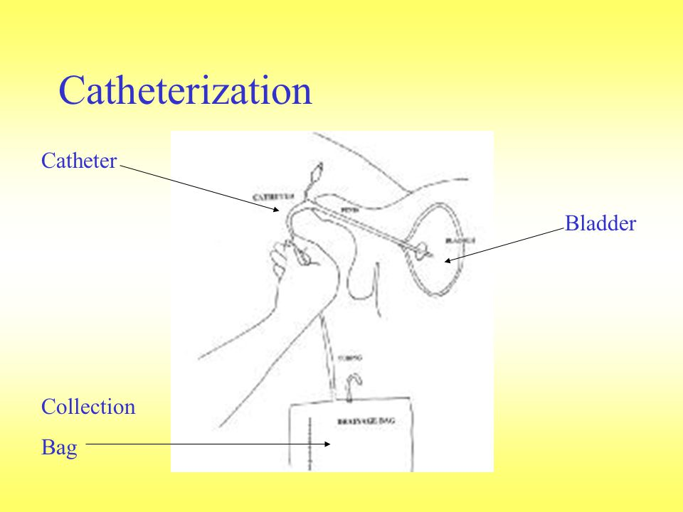 Catheterization Catheter Collection Bag Bladder