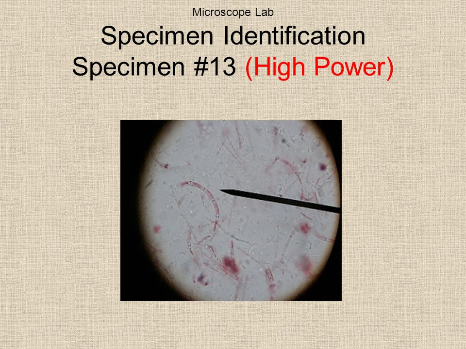 Microscope Lab Specimen Identification Specimen #13 (High Power)