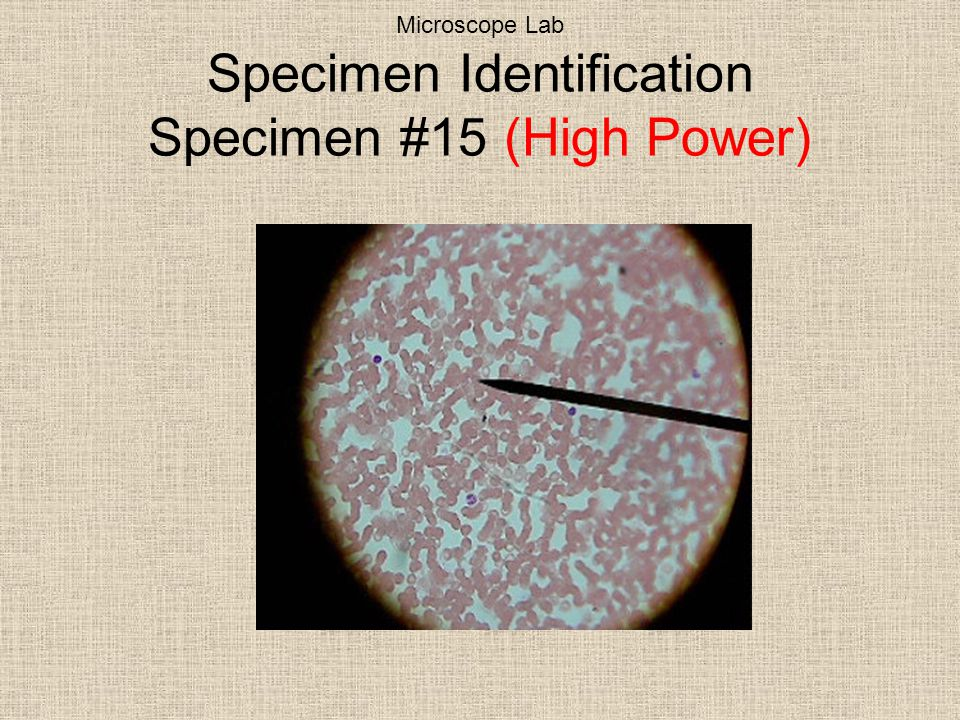 Microscope Lab Specimen Identification Specimen #15 (High Power)
