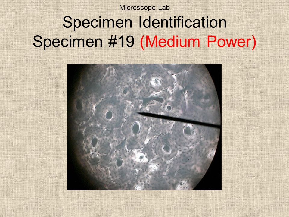 Microscope Lab Specimen Identification Specimen #19 (Medium Power)