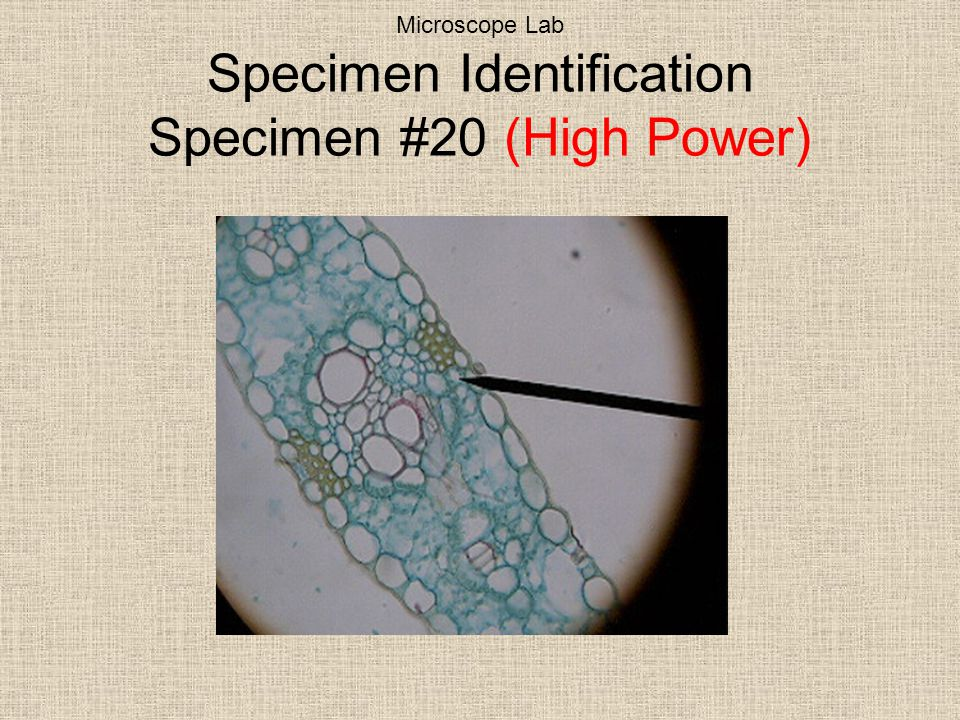 Microscope Lab Specimen Identification Specimen #20 (High Power)