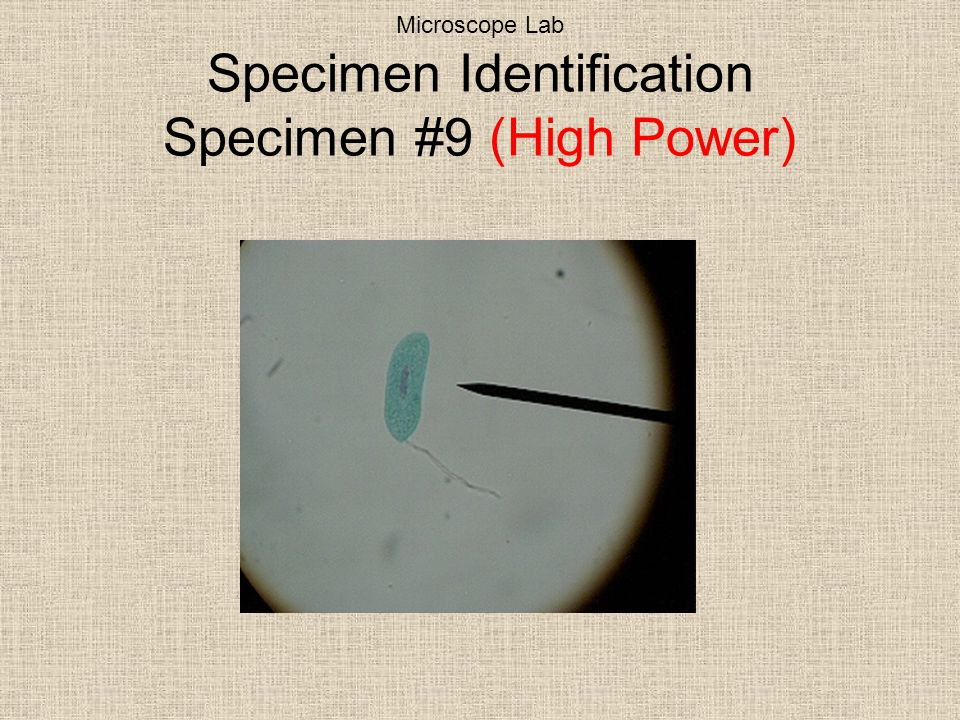 Microscope Lab Specimen Identification Specimen #9 (High Power)