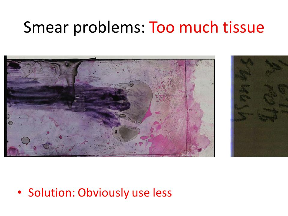Smear problems: Too much tissue Solution: Obviously use less