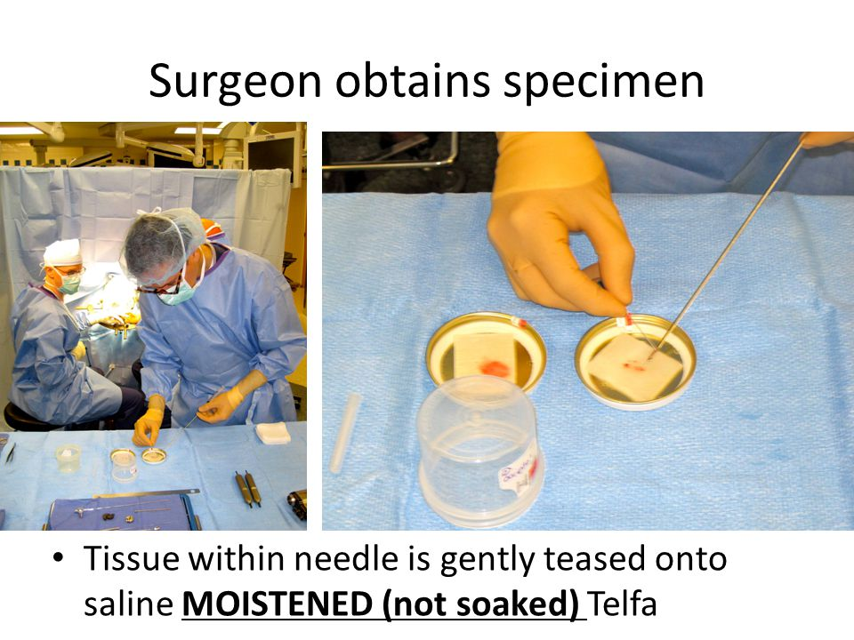 Surgeon obtains specimen Tissue within needle is gently teased onto saline MOISTENED (not soaked) Telfa