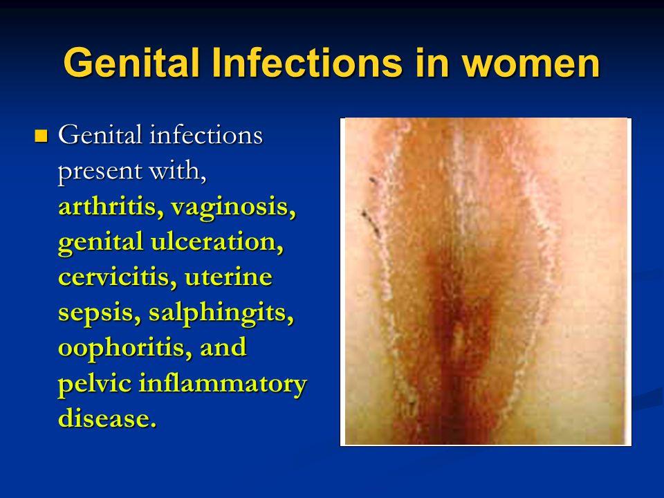 Genital Infections in women Genital infections present with, arthritis, vaginosis, genital ulceration, cervicitis, uterine sepsis, salphingits, oophor