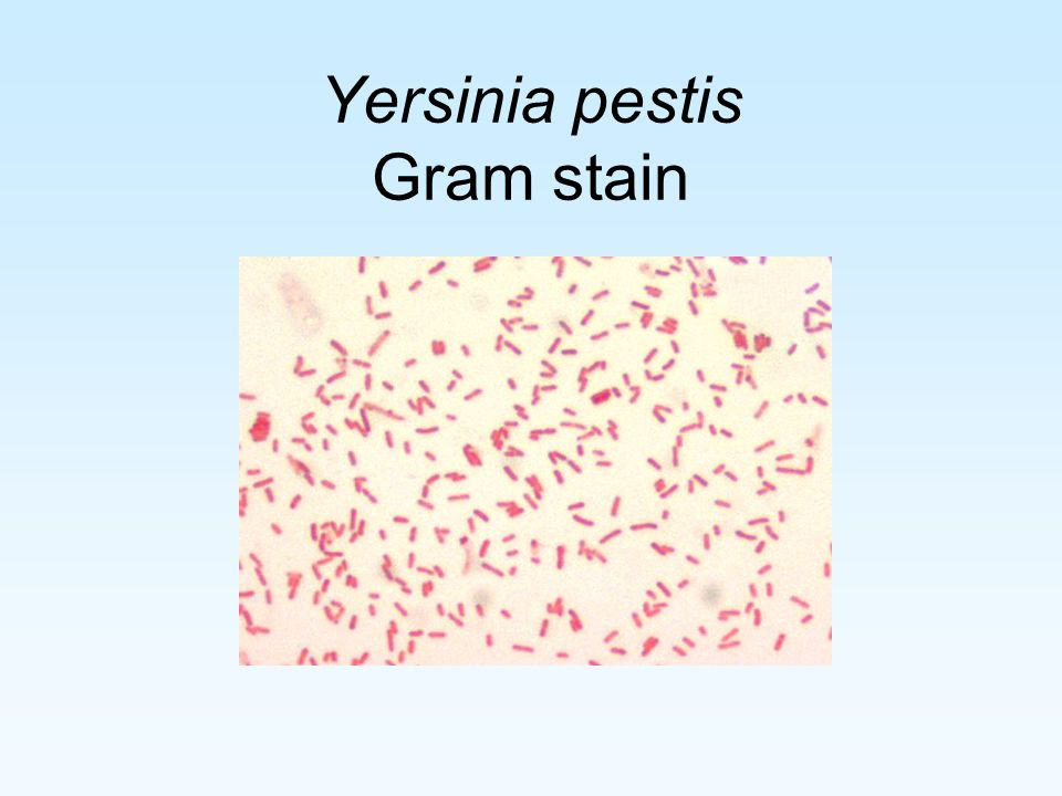 Yersinia pestis Gram stain