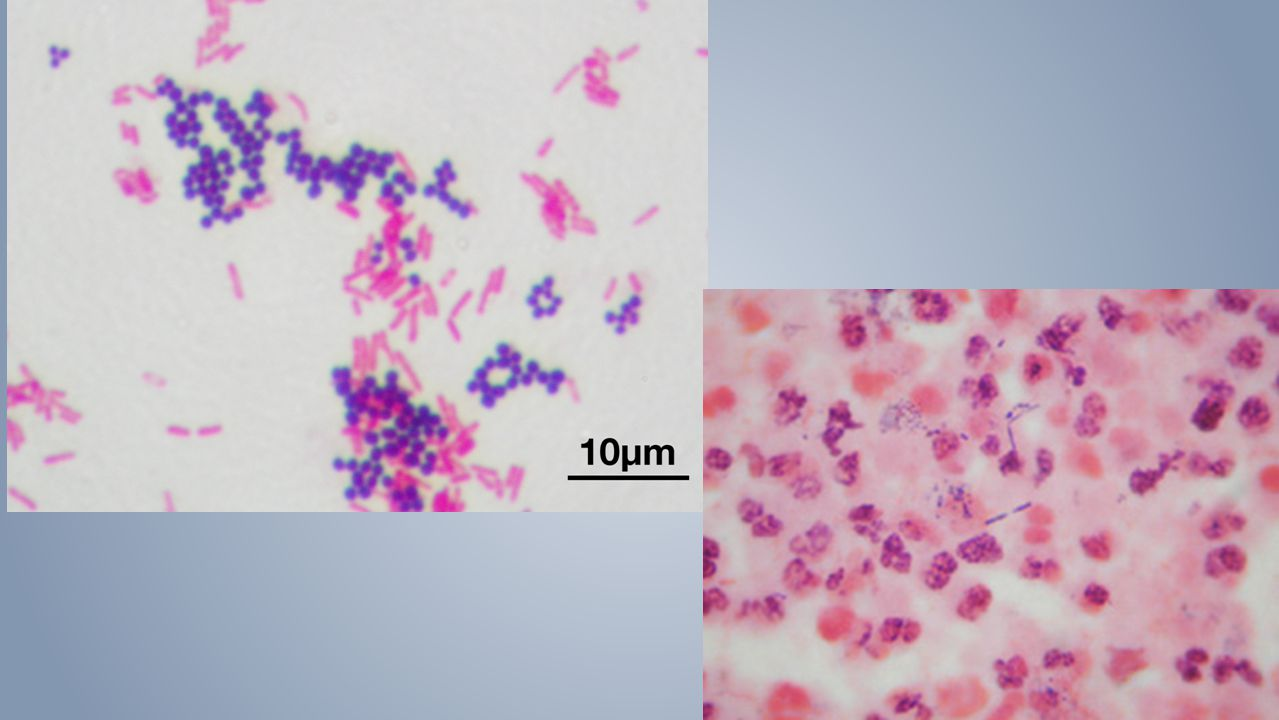 Symptoms PLUS radiology PLUS ›BAL with intracellular bacteria on gram stain ›Pos Blood culture without another source ›Pos culture of pleural fluid ›Pos LRT specimen (BAL or protected brush) NSQIP definition Uncommon to see intracellular bacteria Even from a drain.