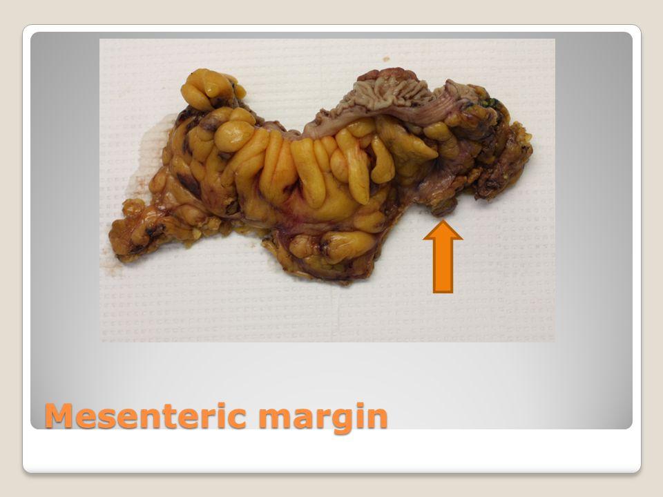 Mesenteric margin