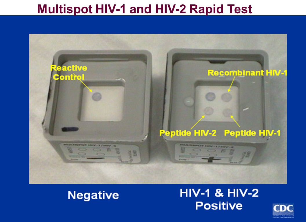 Multispot HIV-1 and HIV-2 Rapid Test