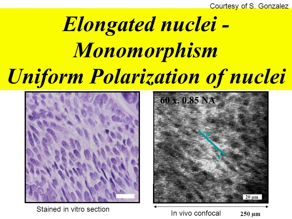 Elongated nuclei - Monomorphism Uniform Polarization of nuclei 20 µm 60 x, 0.85 NA 250 µm x y Stained in vitro section In vivo confocal Courtesy of S.