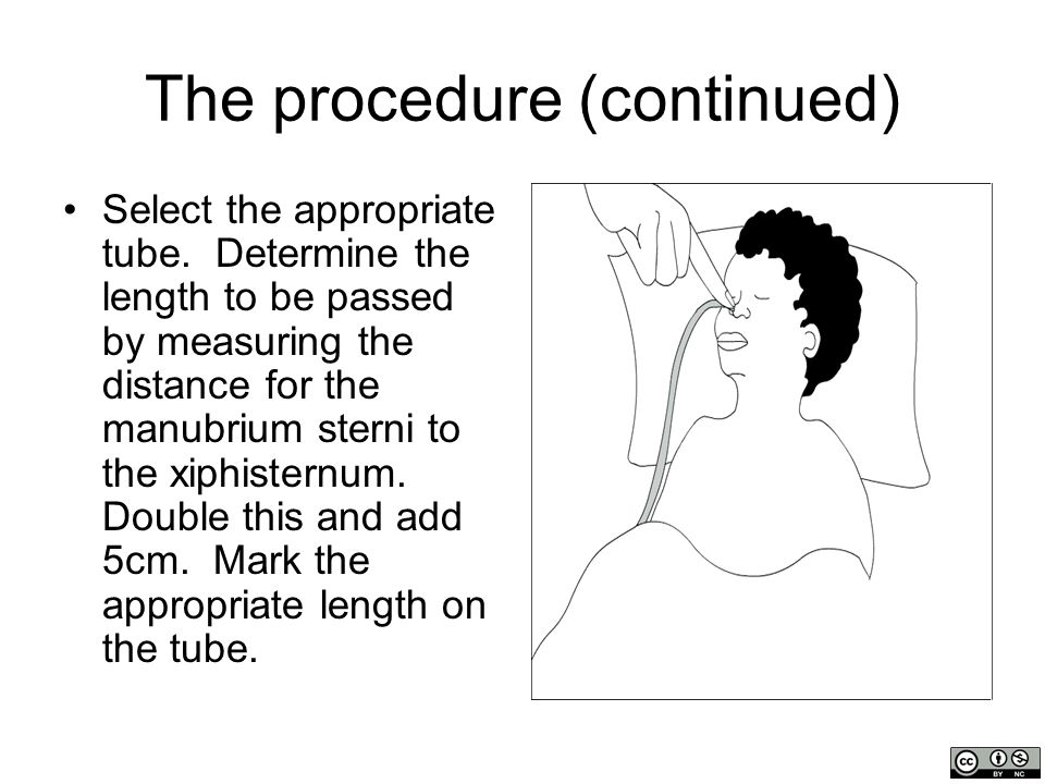 The procedure (continued) Lubricate the lower 3-4cm with KY jelly, and pass it through a nostril toward the occiput (not vertex).