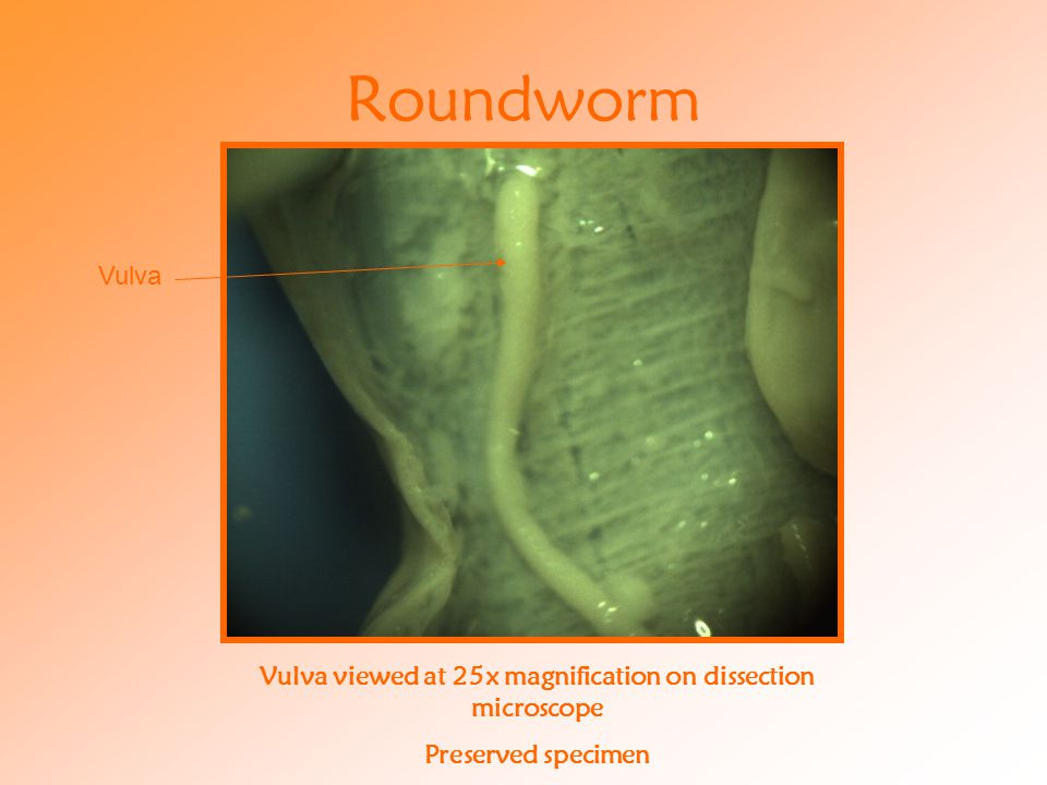 Roundworm Vulva viewed at 25x magnification on dissection microscope Preserved specimen Vulva