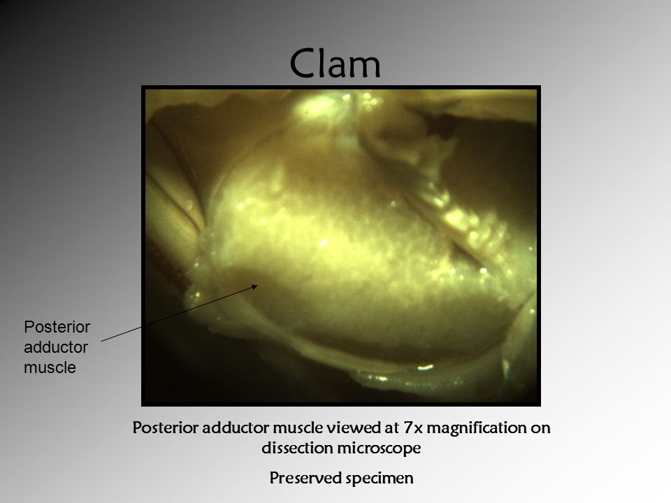 Clam Posterior adductor muscle viewed at 7x magnification on dissection microscope Preserved specimen Posterior adductor muscle