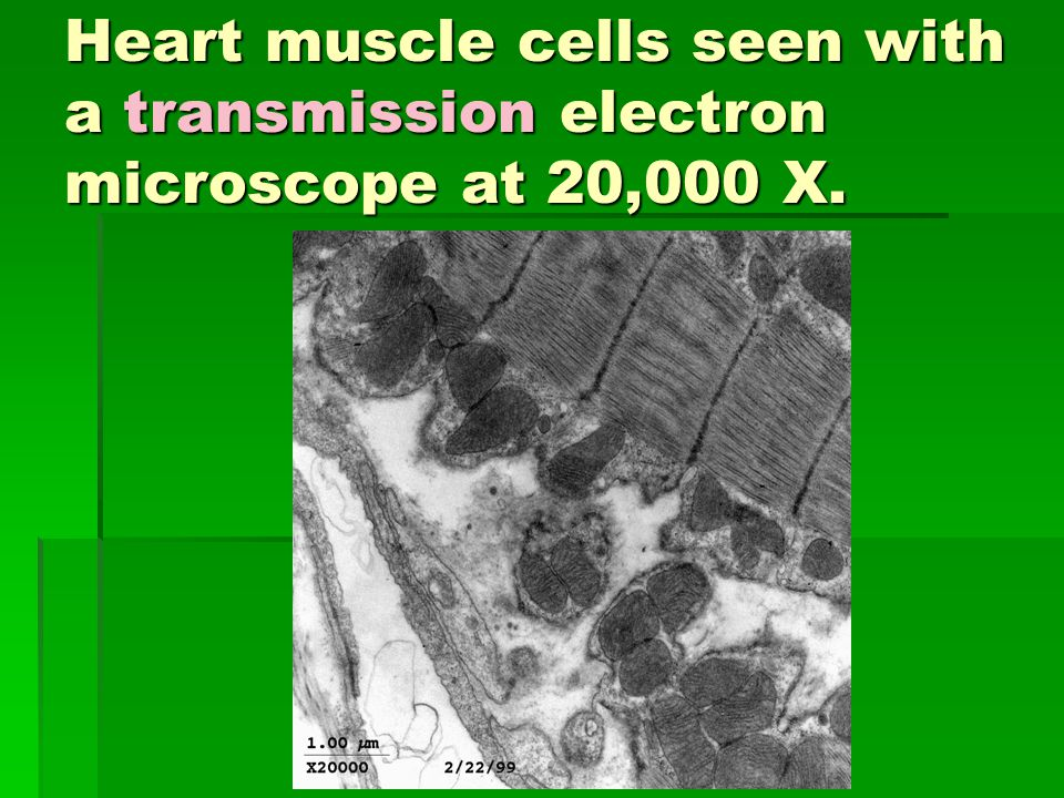 Heart muscle cells seen with a transmission electron microscope at 20,000 X.